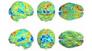 Brain Linkz